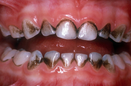 dark stain on teeth