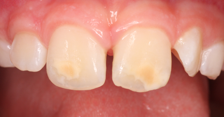 spots or blemishes on teeth and yellow spots on teeth