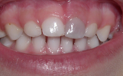 discoloration and grey tooth due to trauma
